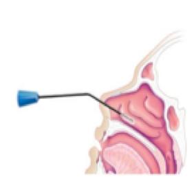 Tecnica_Chirurgica_3